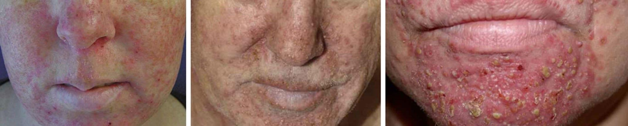 eruptie acneiforma simptome