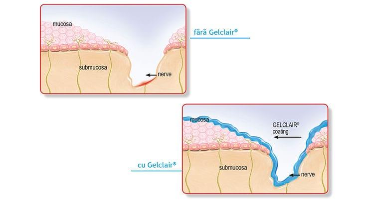 mucozita orala gelclair