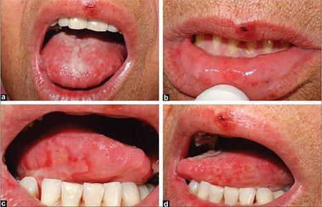 mucozita orala simptome
