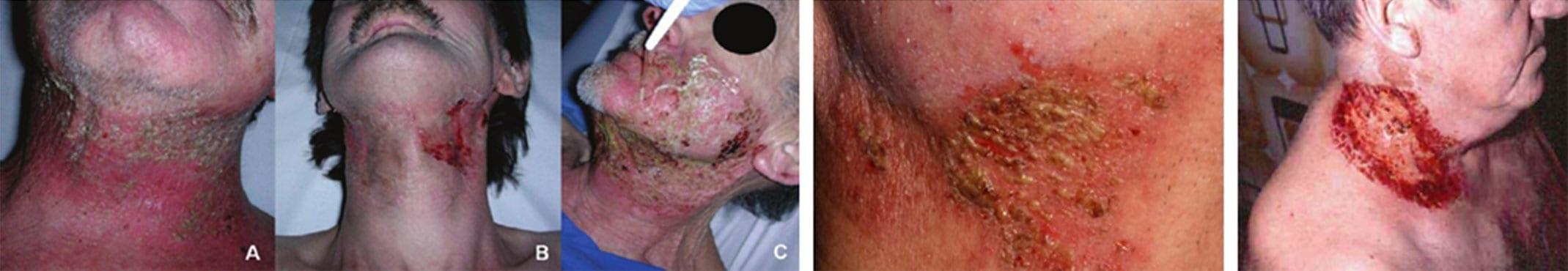 radiodermita simptome