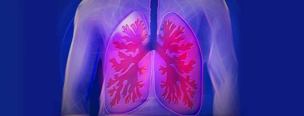 cancerul de plamani se poate trata
