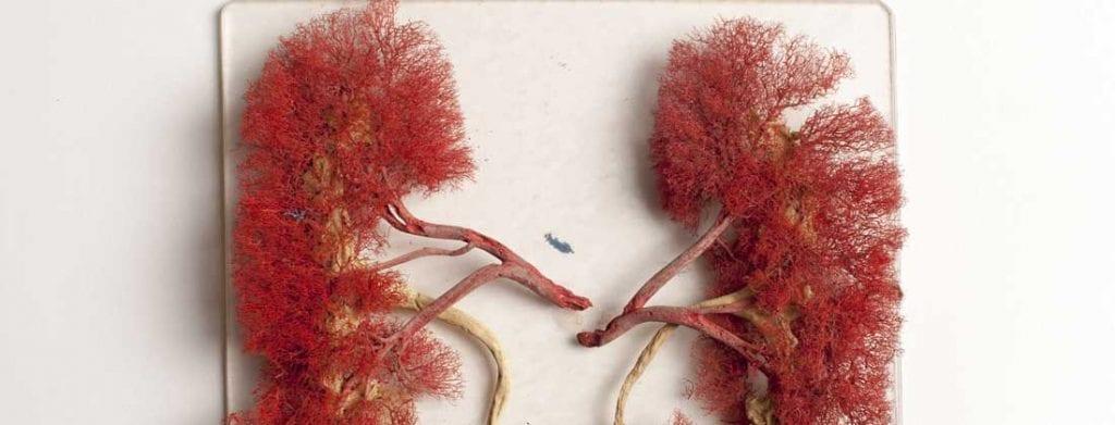 pierderea în greutate carcinom de celule renale)