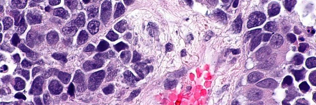 Cancerul de vezica urinara (vezical): Cauze, diagnostic, tratament | daisysara.ro