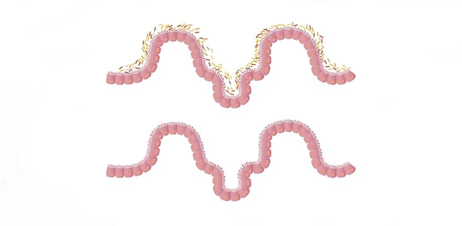 microflora intestinala