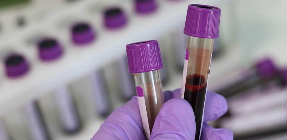 teste sange EBV