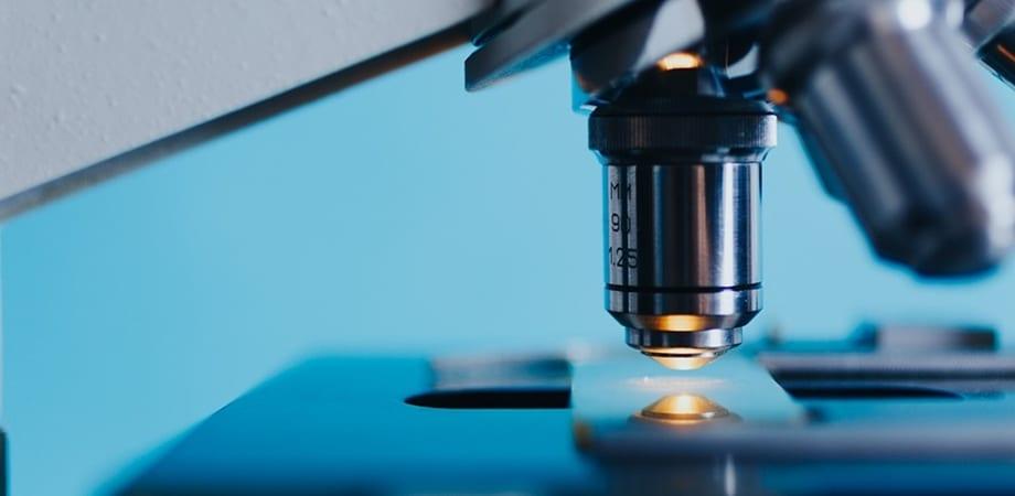 analiza eozinofilelor