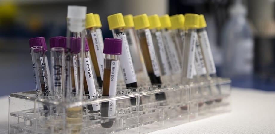 hpv impfung linz tratament oxiuri copii