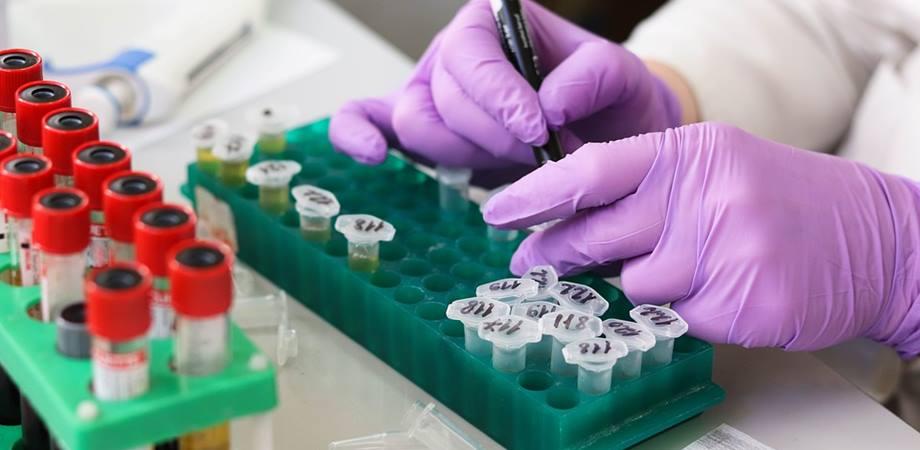 teste imunitate