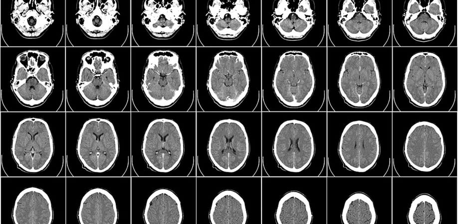 tomografia computerizata