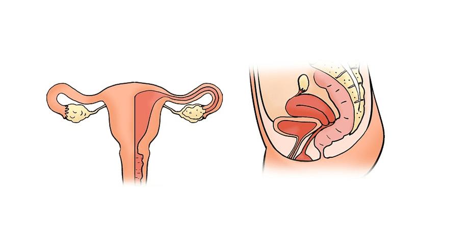 ce este histerectomia