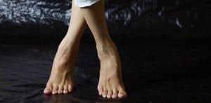 simptome picioare umflate in cancer