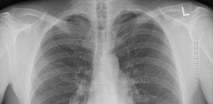 indicatii bronhoscopie