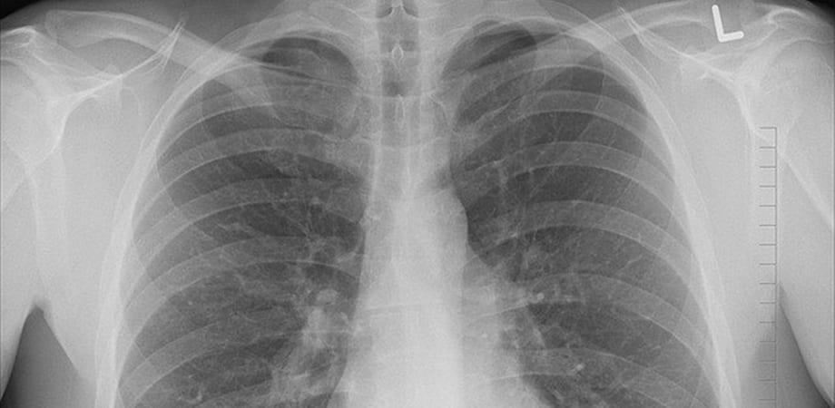 radiografie toracica