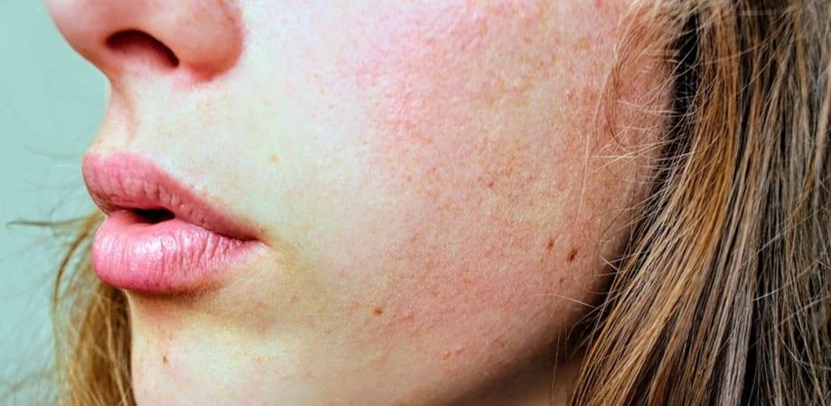 simptomele dermatomiozitei