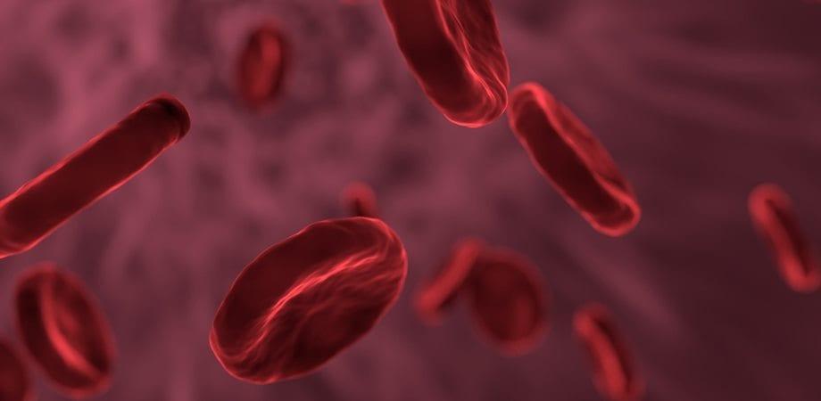 terapia prin plasmafereza
