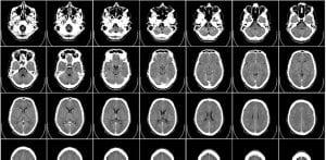 imagistica cerebrala