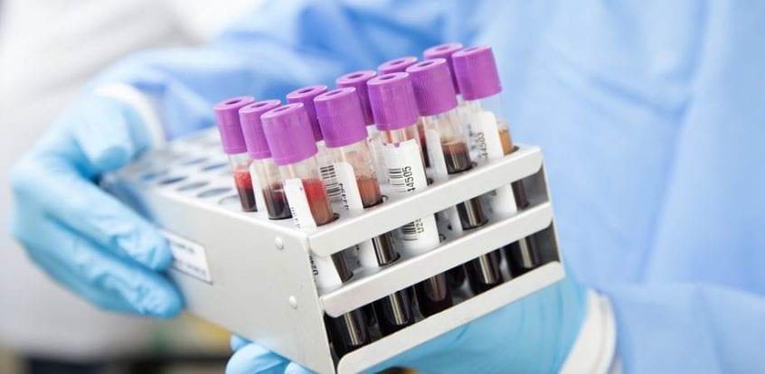 markerul ROMA in cancerul ovarian