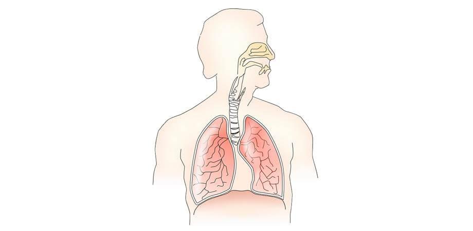 simptomele tumorii pancoast