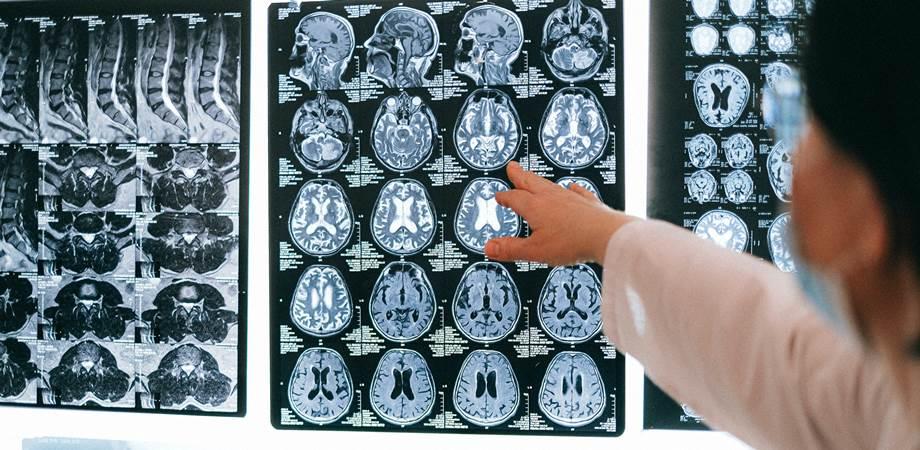 durerile de cap si tumorile cerebrale
