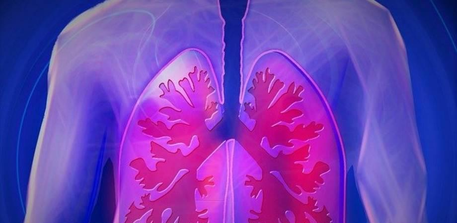 cancerul pulmonar si durerea de spate