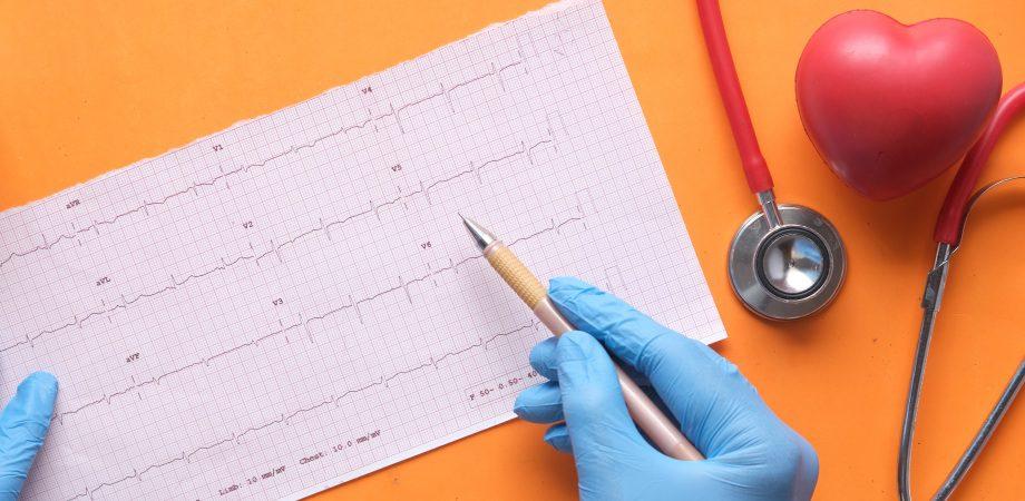 analize pentru mixomul cardiac